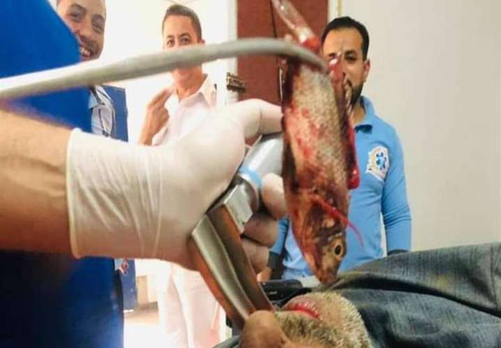 El hombre tuvo que ser intervenido quirúrgicamente.