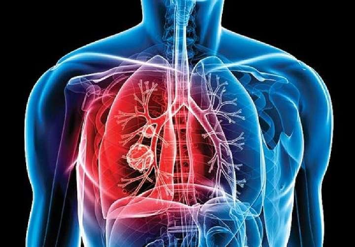 Piden al Minsa y Meduca que se pongan serios sobre tuberculosis en la comarca