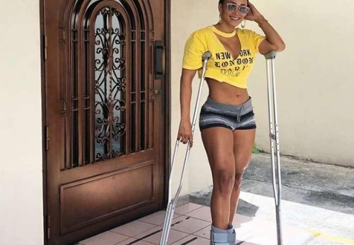 Melissa Piedrahita, con dos huesos fracturados
