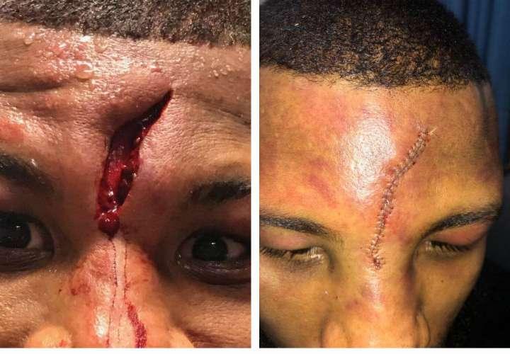 Púgil que sufrió cortadura en su frente necesitó 25 puntos de sutura