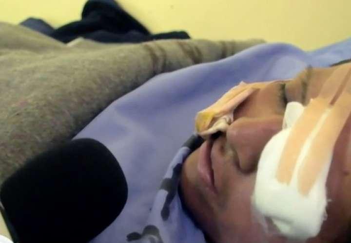 La mujer quedó discapacitada visualmente para el resto de su vida. Foto: voxpopulinoticias.com.mx