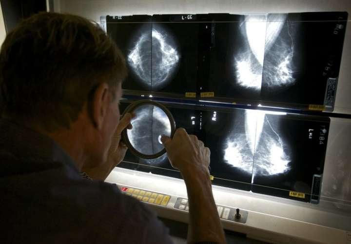 Usar hormonas tras la menopausia aumenta el riesgo de cáncer de seno
