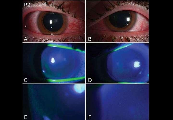 25/11/2020 02:59 (UTC) Autor: EFEI0499 Temática: Sanidad y salud » Sanidad Sanidad y salud » Enfermedades » Enfermedades contagiosas Imagen cedida por la Universidad de Miami de una fotografía con lámpara de hendidura de ambos ojos de un paciente (P2) con