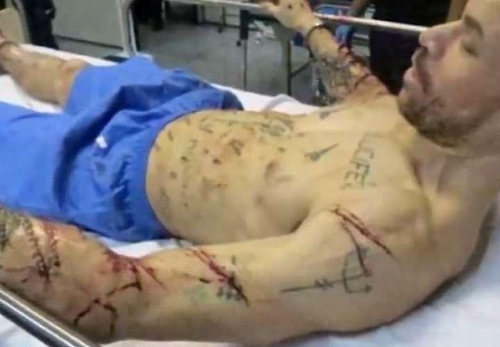 Marcos Paulo da Silva fue diagnosticado con trastorno antisocial y psicosis. (Foto: UOL/Captura de pantalla)