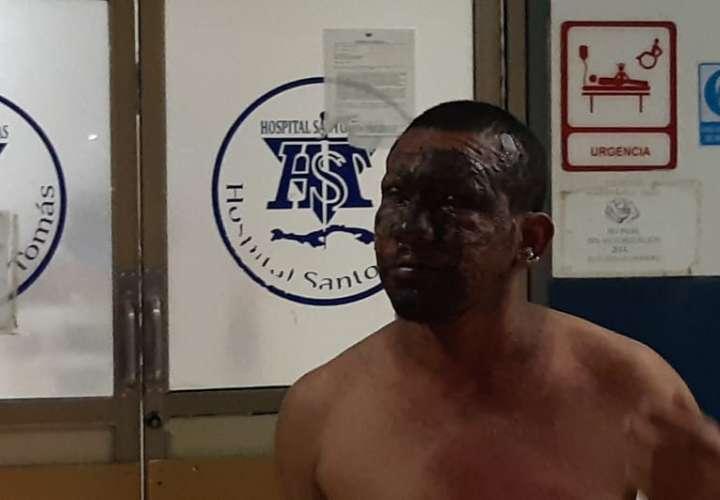 Un hombre con quemaduras en el rostro llegó al Hospital Santo Tomás