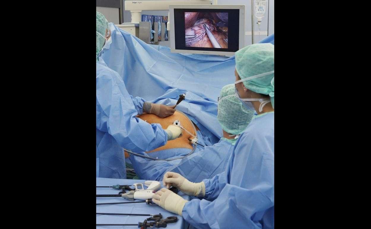 Como resultado de la cirugía el paciente come menos y, al mismo tiempo, absorbe menos del alimento que ha ingerido. Foto: EFE Salud / Archivo