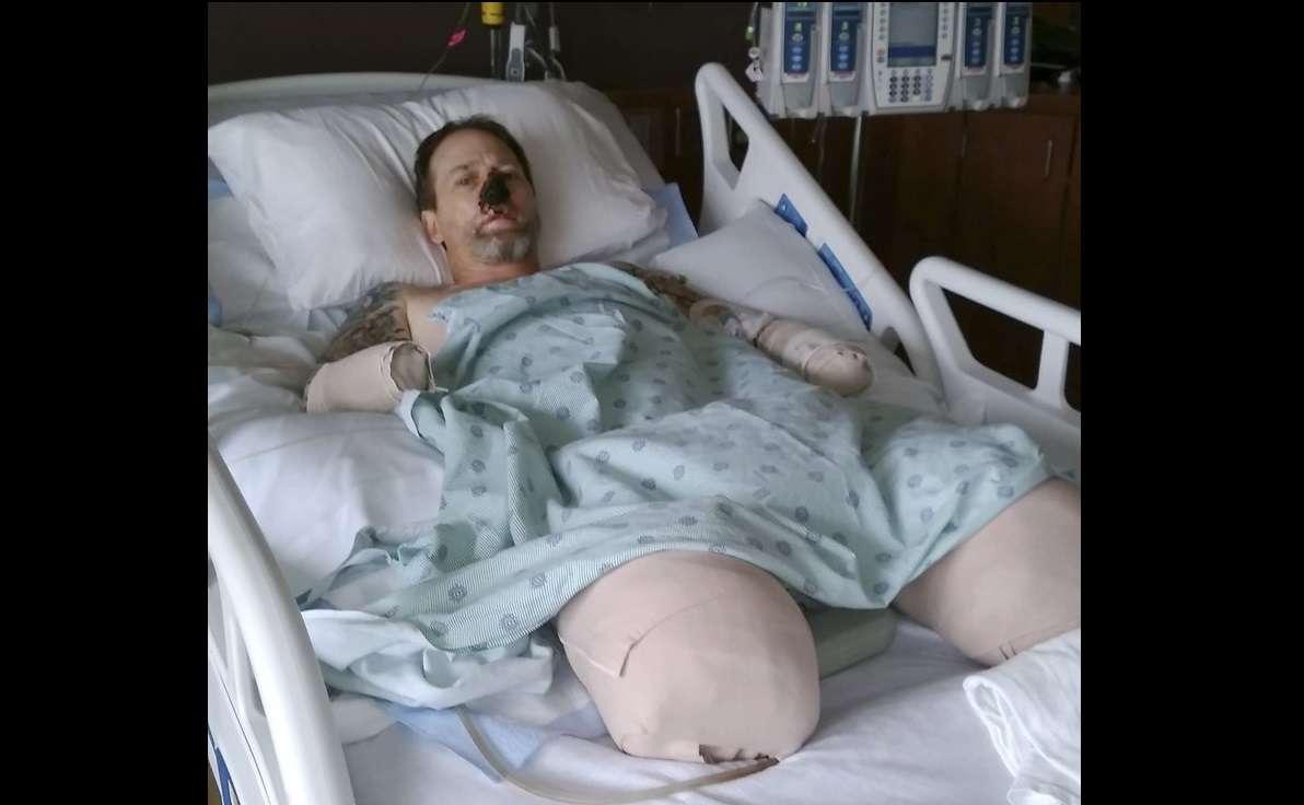 Greg Manteufel, de 48 años, acudió a una clínica del área de Milwaukee con síntomas similares a los de una gripe y ha estado hospitalizado desde fines de junio. AP