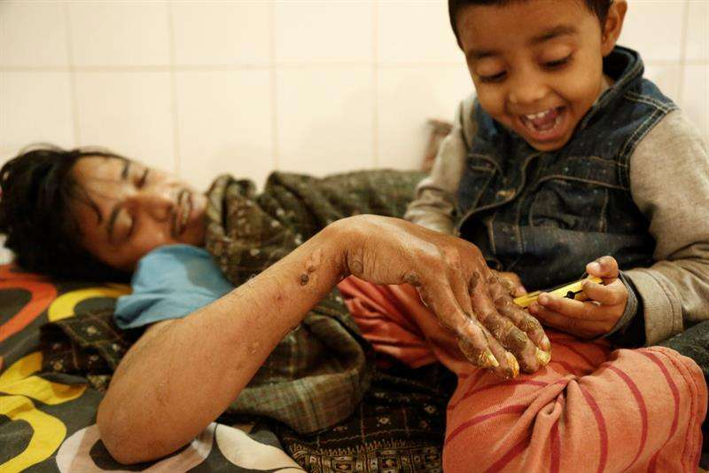 El prolongado tratamiento y la decisión de los doctores de mantener a Bajandar internado también está pasando factura a su familia. /  Foto: EFE