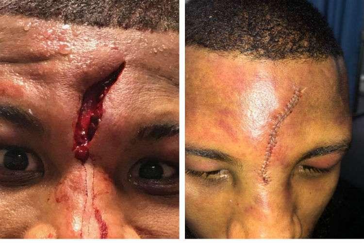 Badou Jack con la herida y luego de recibir los puntos de sutura.