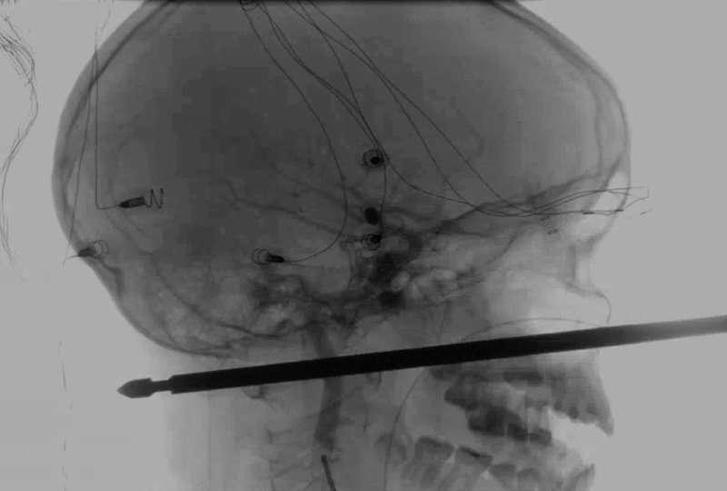 Foto del Medical News Network muestra el resultado de unos rayos X en la cual se ve una brocheta atravesada en la cabeza del niño Xavier Cunningham. AP