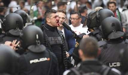 Aficionado del Legia sangra luego de enfrentarse con la policía en Madrid. Foto EFE