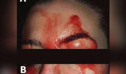 Imagen http://www.cmaj.ca