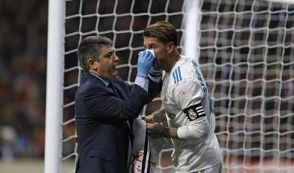 Las pruebas médicas confirman la fractura de la nariz del capitán, quien se perderá el próximo partido de Champions. Foto: AP